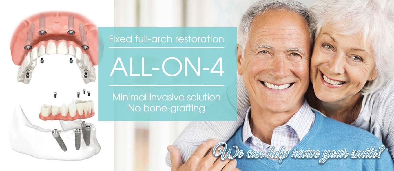 All-On-4 Implant Dentistry